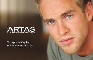 Implantes Capilares