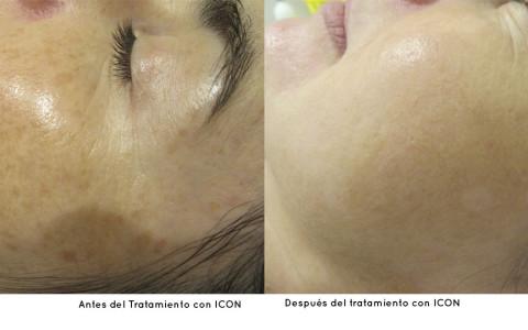 Es hora de dar la cara. Nuevo tratamiento contra las lesiones solares y trastornos de los vasos sanguíneos